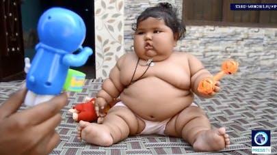 A seulement 8 mois, une petite Indienne pèse 17kg!