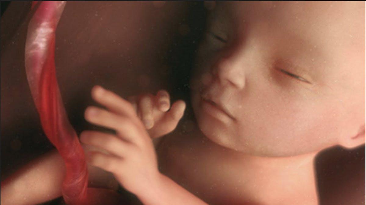 Semaine 18 de grossesse - 18 semaines  - 18e semaine