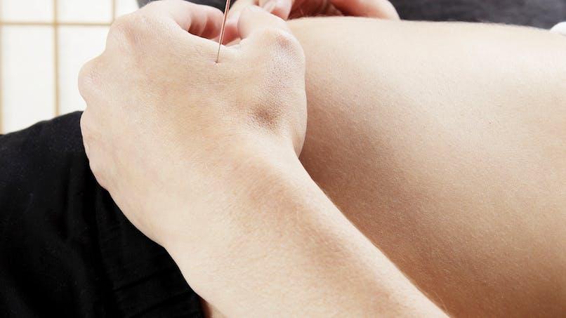 L'acupuncture, une aide pour préparer son accouchement