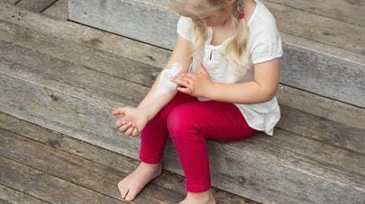 une petite fille piquée par un moustique se met de la pommade
