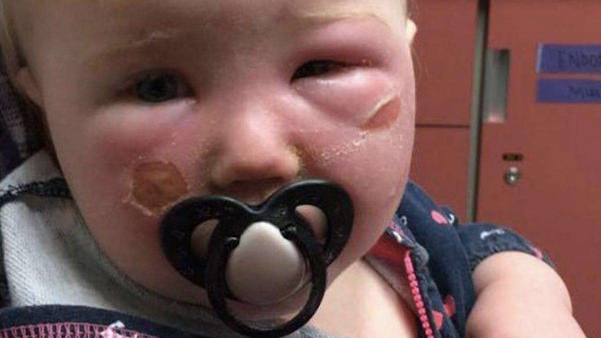 petite fille brûlée par une crème solaire
