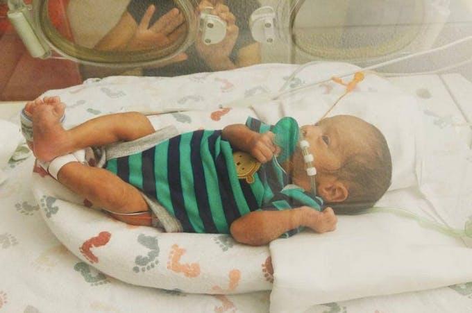Ce bébé prématuré vient au monde dans son sac amniotique !
