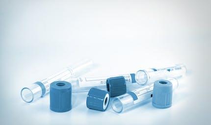 Idées reçues sur la fécondation in vitro