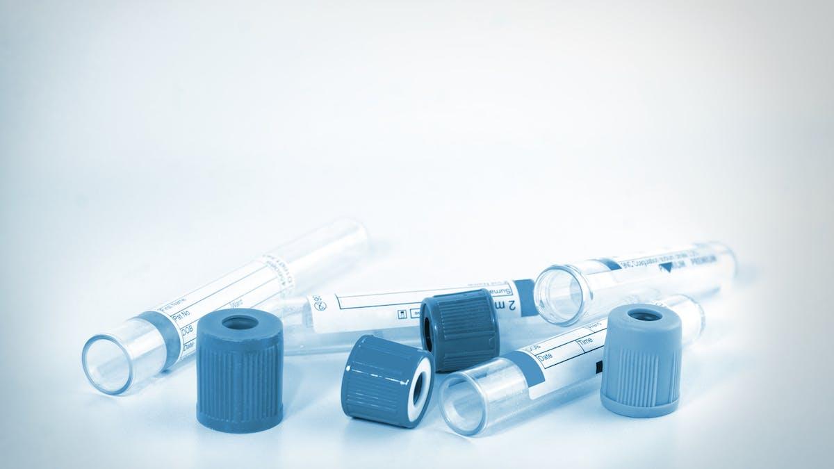 tubes à essais