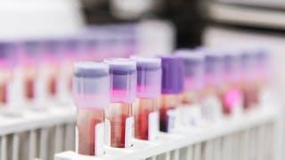 tube à essais sang