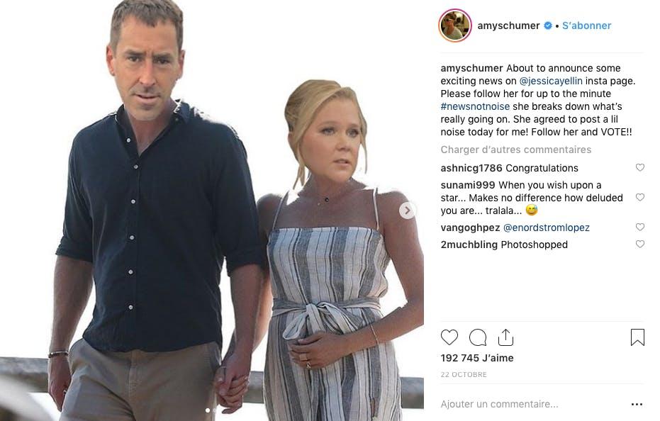 Amy Schumer a annoncé sa grossesse avec un photo montage détournant un cliché de Meghan Markle et Harry