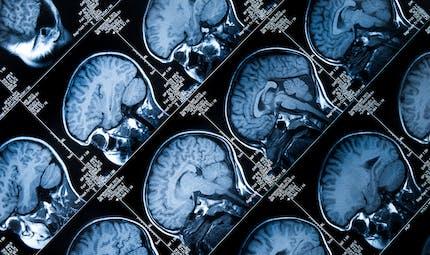 Vrai-faux : l'épilepsie