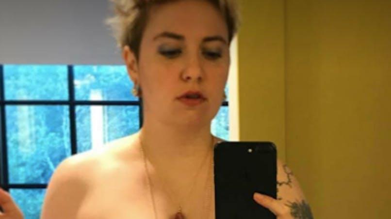 Endométriose: à 31 ans, Lena Dunham opte pour une hystérectomie totale