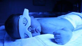 Jaunisse du nouveau-né
