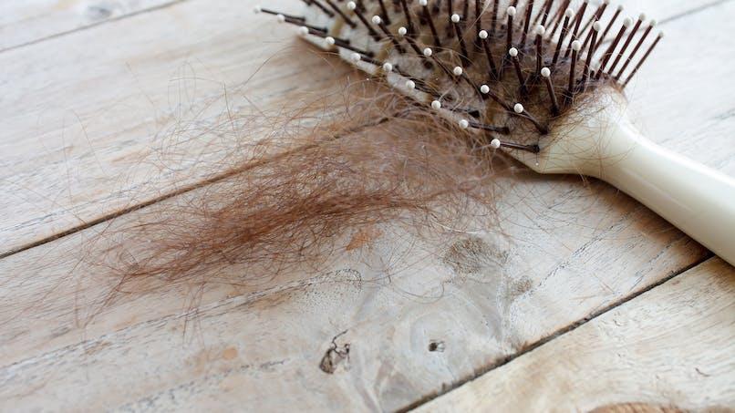 Une boule de cheveux de 2 kg retirée de l'estomac d'une fillette de 6 ans