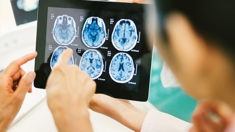 Grossesse : elle fait une IRM et l'image du cerveau de son bébé est...surprenante !