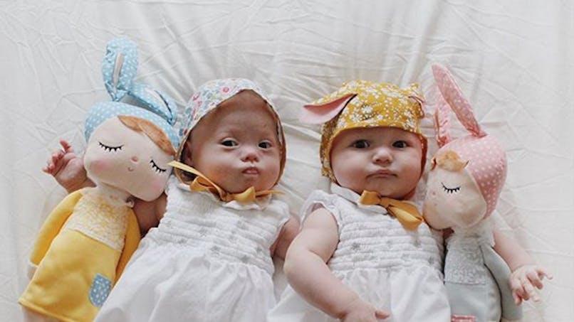 Trisomie 21: une maman se bat contre les préjugés pour l'une de ses jumelles, trisomique