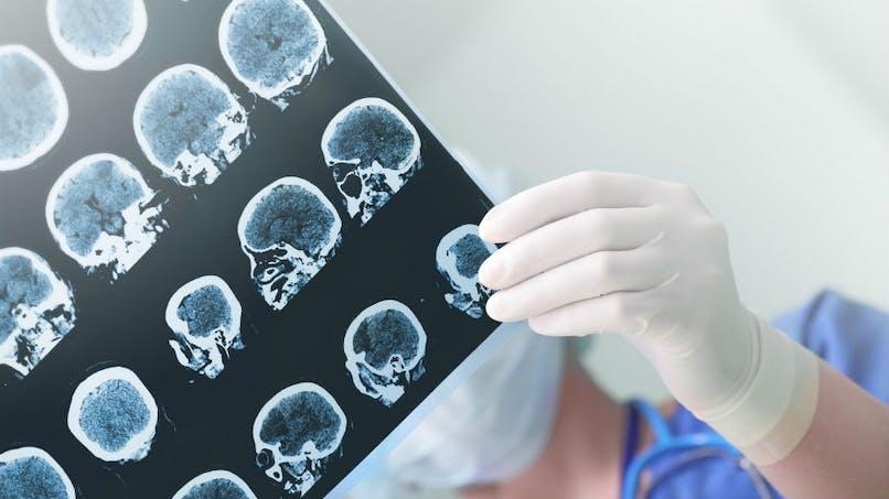 Épilepsie: l'importance du premier traitement reçu pour traiter cette maladie