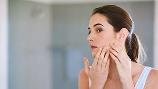 femme et acné