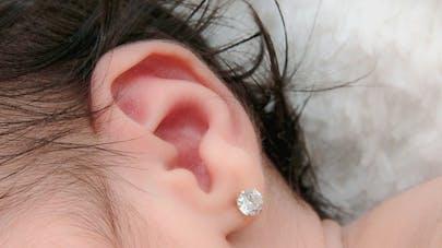 Une mère furieuse de voir que le père de sa fille lui a percé les oreilles sans son accord