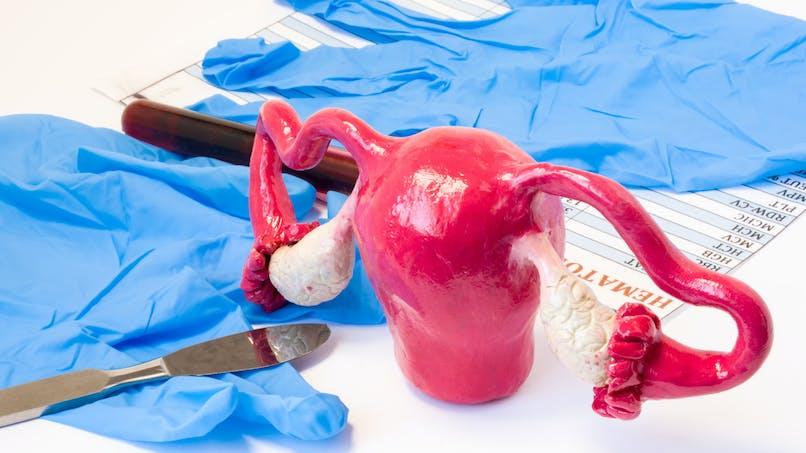 Endométriose : un espoir de traitement à base de cellules-souches