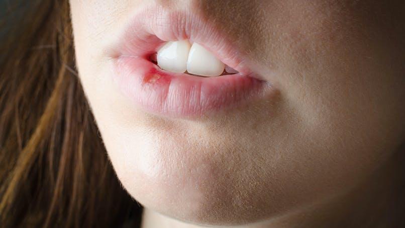 Herpès labial: comment prévenir les récidives