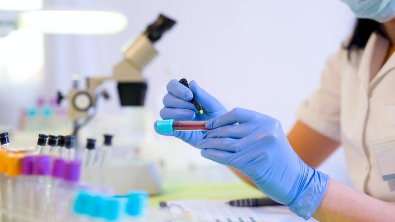 Cancer : bientôt détecté en 10 minutes grâce à un test sanguin