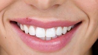 L'herpès labial très contagieux