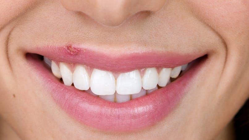 Herpès labial : comment se soigner et éviter la contagion ?