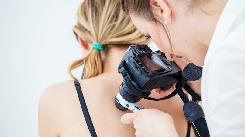 Cancer de la peau : pensez au dépistage aussi de la muqueuse génitale