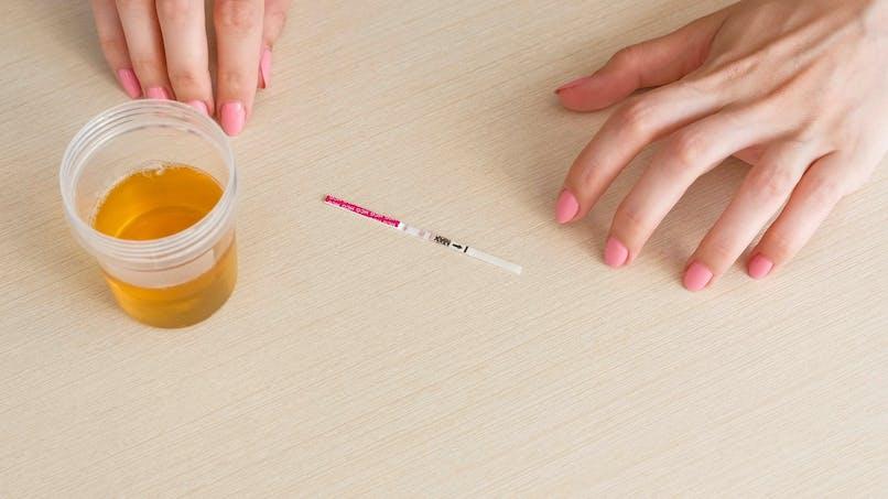 Cancer du col de l'utérus : un test urinaire aussi efficace que les frottis de dépistage