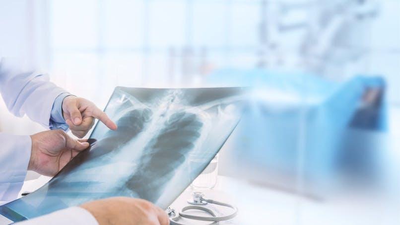 Une association alerte sur des cas de migration d'implants contraceptifs dans les poumons