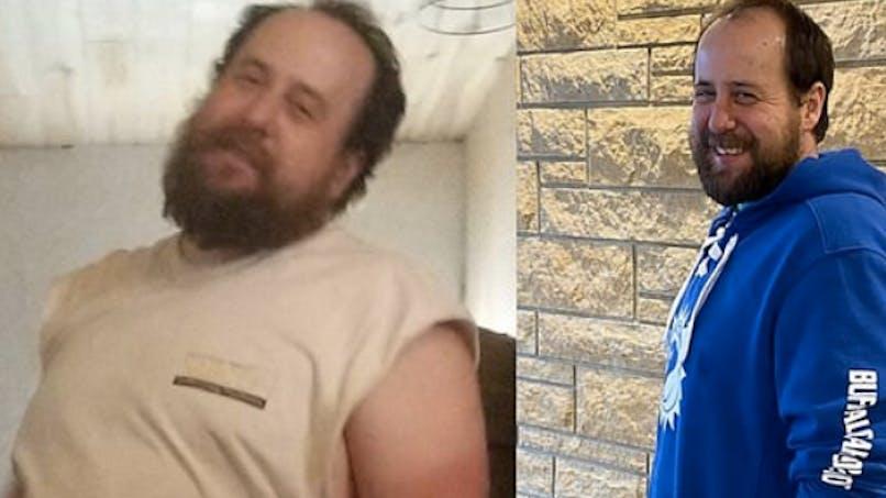 Greffe : il perd 20 kg pour donner une partie de son foie à son bébé atteint d'une maladie génétique