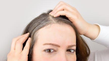 Stress : on sait enfin pourquoi et comment il donne des cheveux blancs