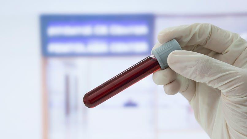 Une analyse de sang pourrait prédire quand surviendra la ménopause