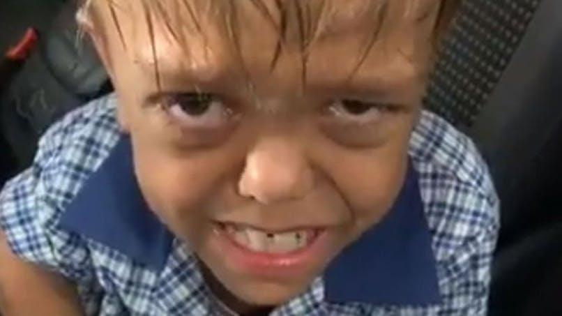 Harcèlement : la bouleversante vidéo du petit Quaden, atteint de nanisme, a fait le tour du monde