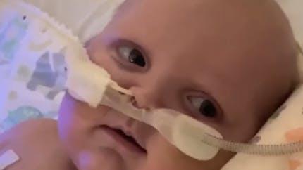 Après 2 opérations à coeur ouvert, un bébé sourit pour la première fois