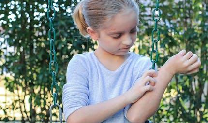 Coronavirus : comment reconnaître les symptômes cutanés chez l'enfant ?