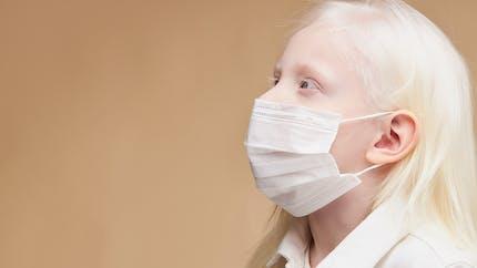 Tout savoir sur l'albinisme chez l'enfant
