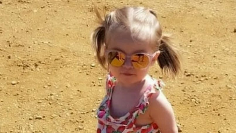 Cette petite fille est née avec les intestins, le foie et l'estomac à l'extérieur du corps