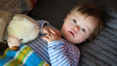 Trisomie 21 : dépistage, symptômes, prise en charge, conséquences