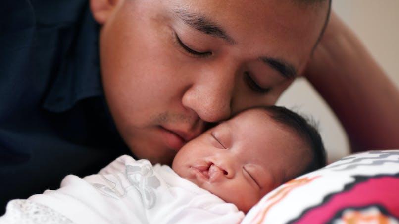 Un bébé atteint d'une fente labio-palatine dort avec son père.