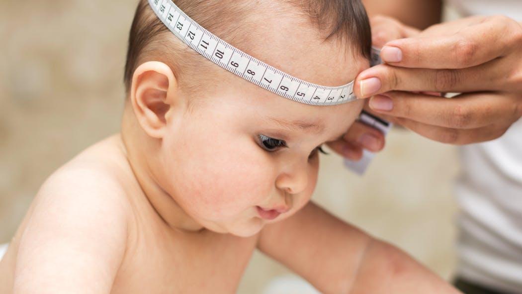 Craniosténose : comment la détecter chez bébé ?