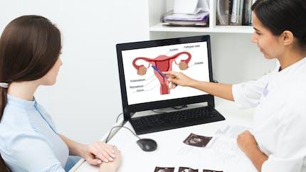 Endométriose: non diagnostiquée, elle compromet le traitement de la fertilité, souligne une étude