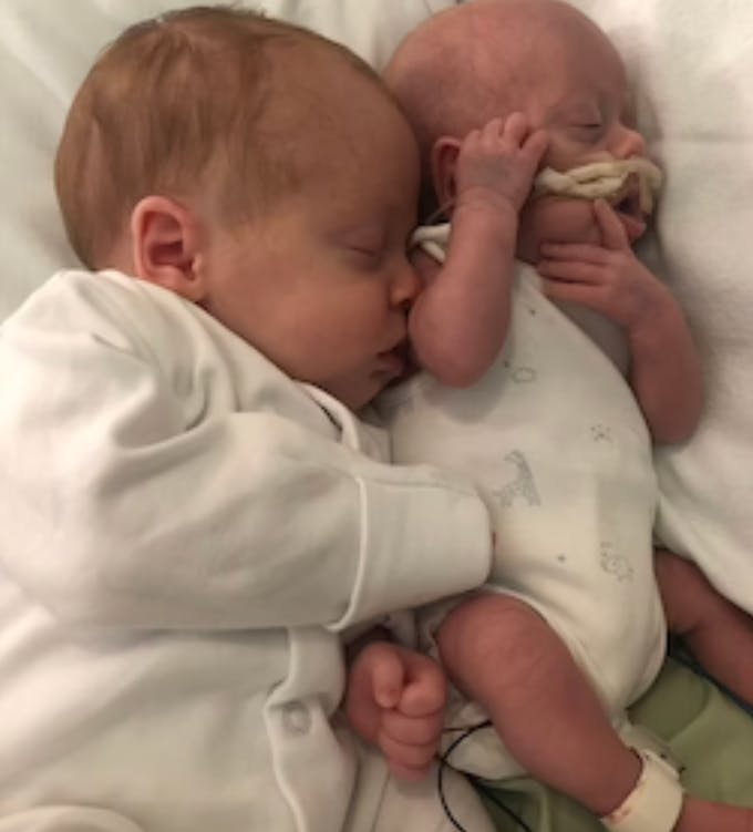 jumeaux prématurés